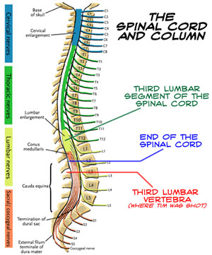 Herniated Disc In the Neck and Lower Back: Symptoms, Treatment ...